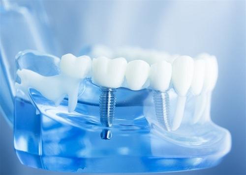 Reason Why We Need Mini Dental Implants