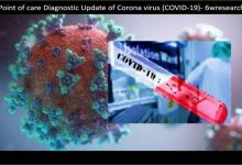 Point Of Care Diagnostic Update Of Coronavirus (covid 19) Mashhap