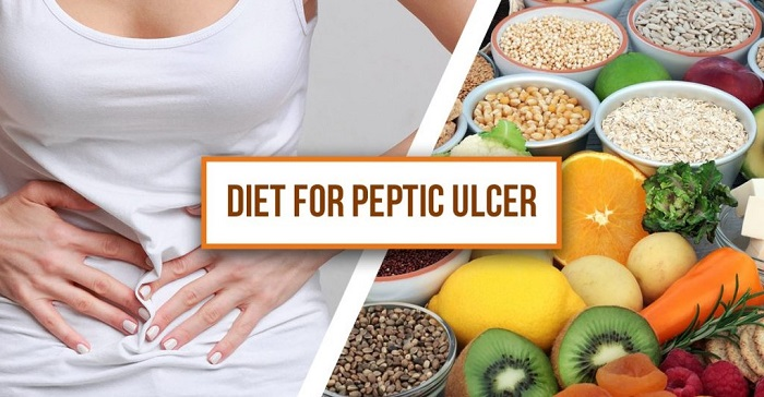 Stomach Ulcer Diet Menu - Prevent Heartburn and Ulcers With This Healthy Stomach Ulcer Diet