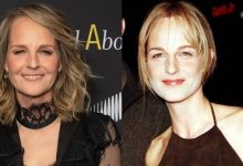 Has Helen Hunt Had Plastic Surgery